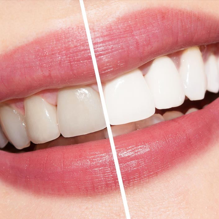 Whitening - Dental Services